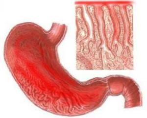Икота по причине воспаления слизистых желудка