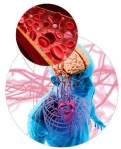 Развитие гипоксии при длительной икоте