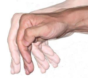 Дрожание пальцев рук при отравлении этанолом