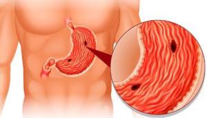Очищение сосудов клюквой при язве желудка