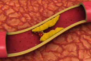 Избавление от холестерина красным клевером