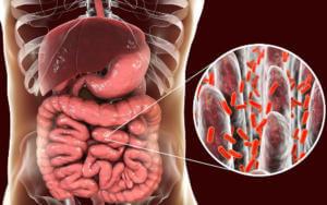 Черный чай при дисбактериозе кишечника