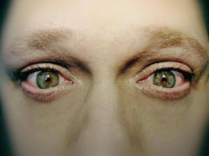 Лихорадочный блеск в глазах при употреблении гашиша