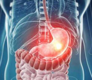Расстройство желудка при отравление левомицетином