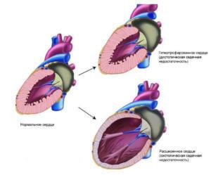 Острая сердечная недостаточность после отравления окисью углерода
