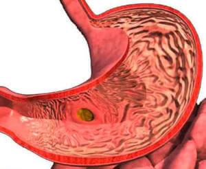 Язва желудка после отравления йодом