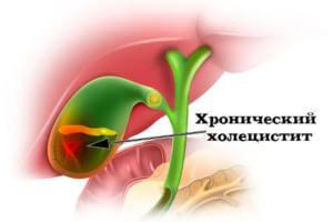 Отруби при хроническом холецистите