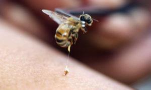 Фото укуса пчелы с жалом