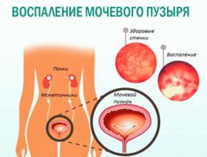 Бисакодил действует через