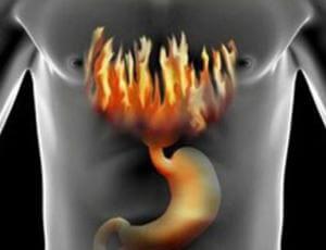 Изжога при передозировке Дюфалака