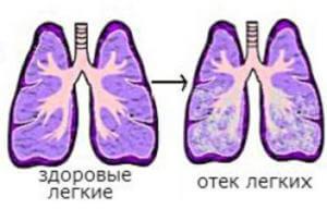 Отек легких при передозировке Финлепсина