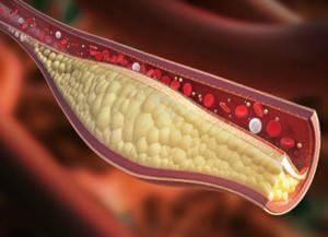 Действие селена на холестериновые бляшки