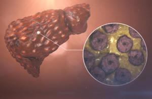 Повреждение клеток печени при передозировке витамина С