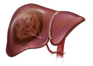Повреждение тканей печени при отравлении витамином D3