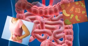 Полисорб при дисбактериозе