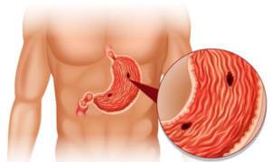Омепразол при язвенной болезни желудка