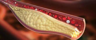 Питание для очищение сосудов от холестерина