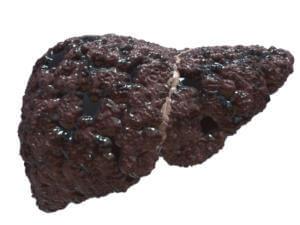 Расторопша при циррозе печени