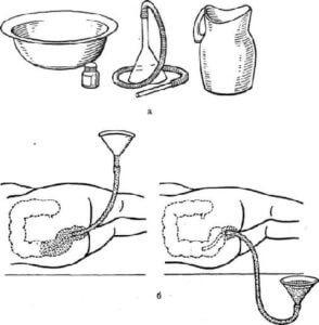 Алгоритм промывания кишечника