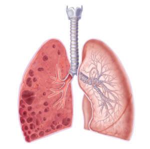 Токсический пневмосклероз
