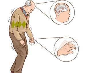 Паркинсон при хроническом отравлении организма