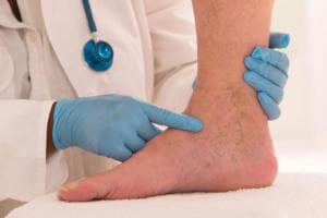 Чистка крови травами при тромбофлебите