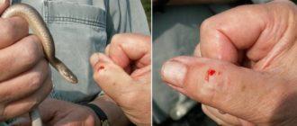 Что делать после укуса ужа